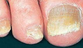 Gljivična infekcija noktiju