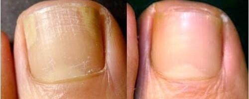 Gljivična infekcia prije i poslije